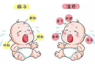 宝宝痱子和湿疹的区别 湿疹和痱子的区别图片