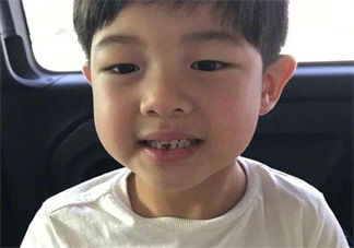 孩子换牙牙不掉 孩子双排牙要不要拔