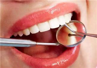 孕妇可不可以洗牙 孕妇两个阶段不能洗牙