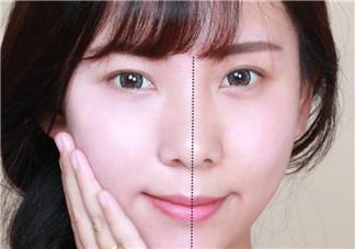 产后皮肤敏感怎么办 生完孩子皮肤敏感应该怎么护肤