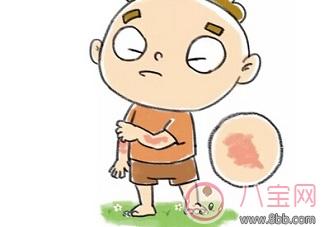 宝宝和孕妇得了荨麻疹能用炉甘石洗剂吗 炉甘石洗剂真的有效吗