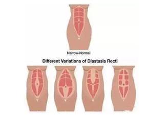 产后多久可以做腹直肌分离自测 产后腹直肌分离自我检测步骤