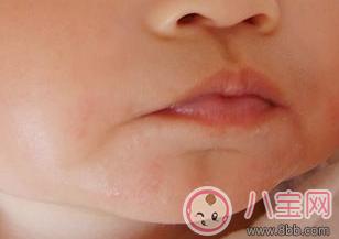 宝宝吃鸡蛋过敏的症状  宝宝吃鸡蛋过敏的图片