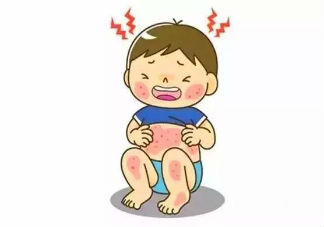 宝宝湿疹最佳治疗方法 宝宝湿疹是怎么引起的