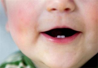 孩子什么时候会长出第一颗牙齿 孩子长牙规律分析