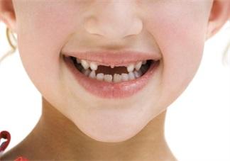 孩子换牙说话结巴怎么办 孩子换牙齿的时候不自信怎么安抚