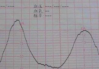 胎监评分怎么看 2018胎监评分多少分算正常