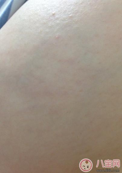 怀孕七个月有妊娠纹_妊娠纹前兆是红点点吗 妊娠纹是长什么样子初期图片 _八宝网