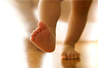 宝宝罗圈腿怎么矫正 怎么判断是不是罗圈腿