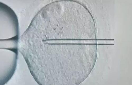 睾丸穿刺取精有多疼2018 试管婴儿睾丸穿刺取精有危险吗