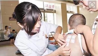 小孩贴三伏贴皮肤上起泡怎么办 小孩三伏贴过敏原因是什么