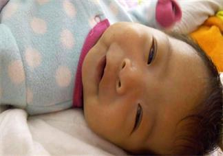 宝宝黄疸在家怎么护理 孩子黄疸怎么做可以缓解2018