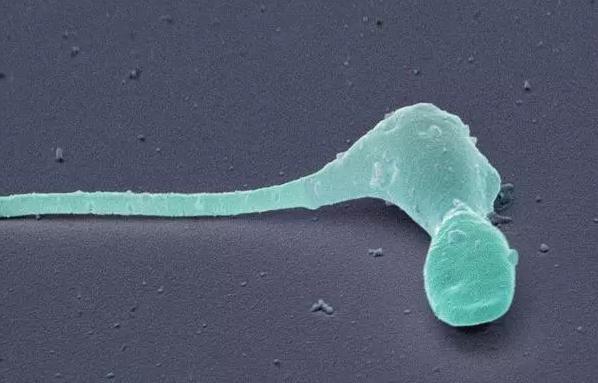 吃止疼药对精液质量有影响吗 吃止疼药影响试管婴儿备孕吗