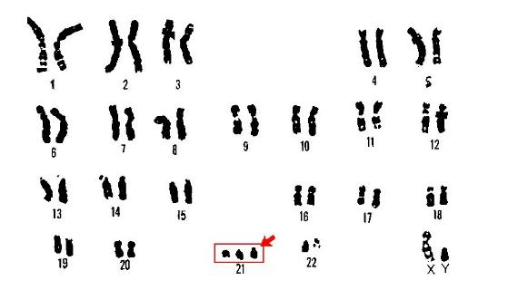 染色体平衡异位可以做试管婴儿吗 染色体平衡异位会有哪些疾病