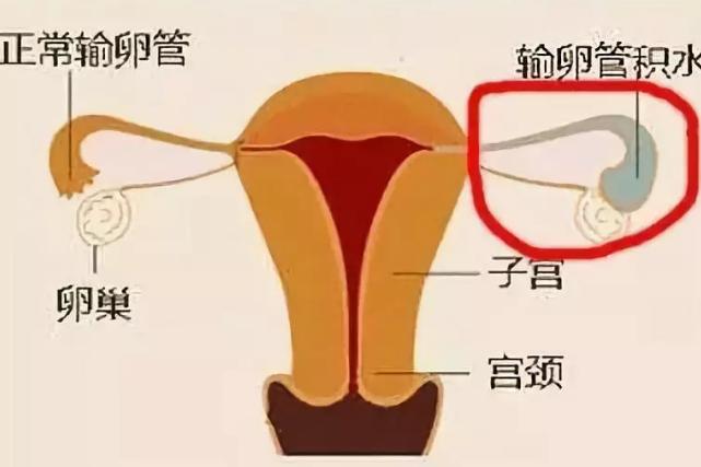 输卵管积水能做试管婴儿吗 输卵管积水怎么预防2018