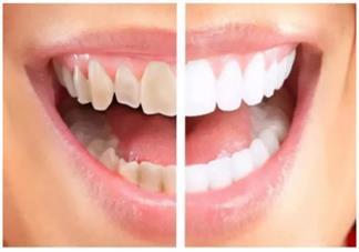 孩子牙齿黄黄的是怎么了 为什么孩子的牙齿会变黄