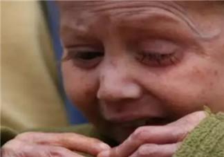 儿童早衰症是什么样的 早衰症女孩11岁像80岁