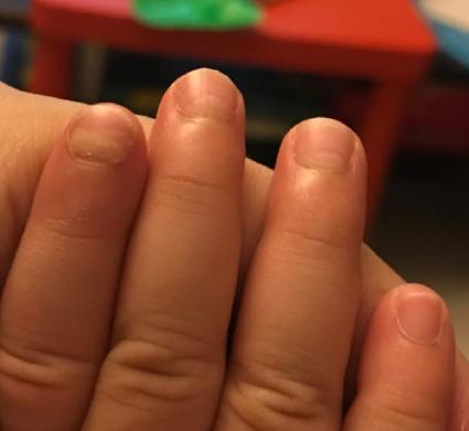 宝宝脚指长厚变双层怎么回事 2岁小朋友的脚拇指长厚变双层原因