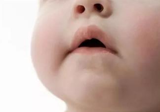 秋冬宝宝嘴唇干裂怎么办 秋冬如何护理宝宝双唇