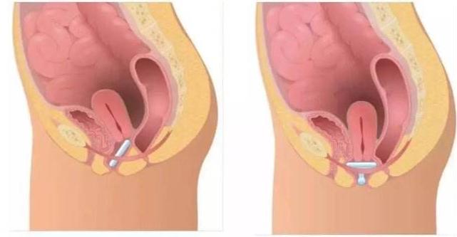 子宫脱垂对女人有甚么损害 子宫脱垂吃甚么食物好