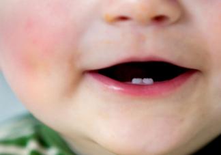 妈妈牙齿不好会遗传吗    牙齿不齐会遗传给孩子吗