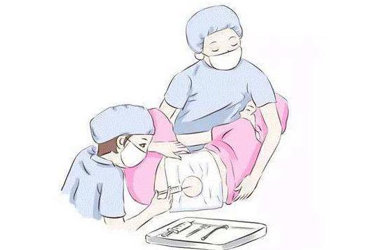 无痛分娩有效果吗   无痛分娩注意事项