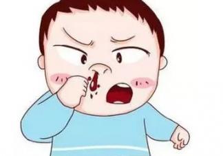宝宝流鼻血就真的是上火吗 这些误区要注意