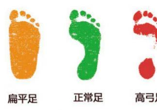 为何新生儿都是扁平足呢 扁平足如何矫正