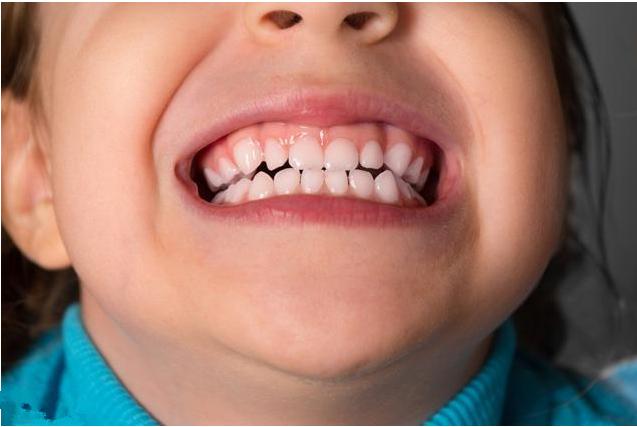 孩子门牙掉了什么时候能长出来 孩子门牙掉了急救处理方法