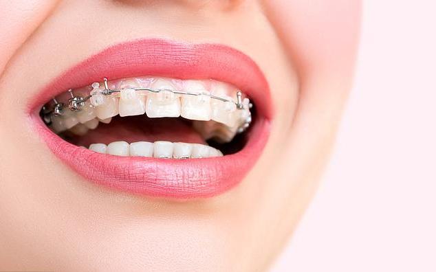 怀孕期间可以做牙齿矫正吗 孕期做矫正牙齿的坏处