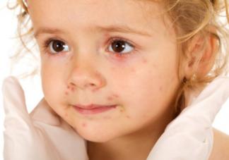 造成孩子过敏体质的原因 过敏体质是什么原因造成的