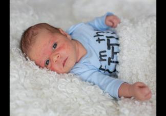 宝宝湿疹反复怎么办 宝宝湿疹你知道该怎么护理吗