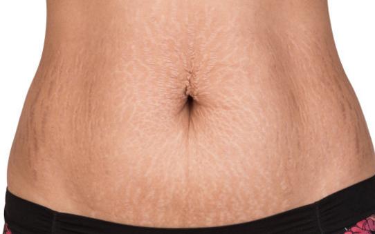 孕妇肚子上的黑线是什么 孕妇肚子长黑线有什么作用