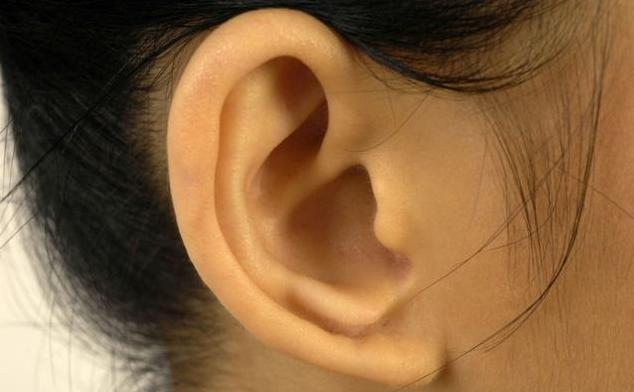 宝宝耳朵畸形什么时候矫正最好 宝宝耳朵畸形矫正的最佳时间