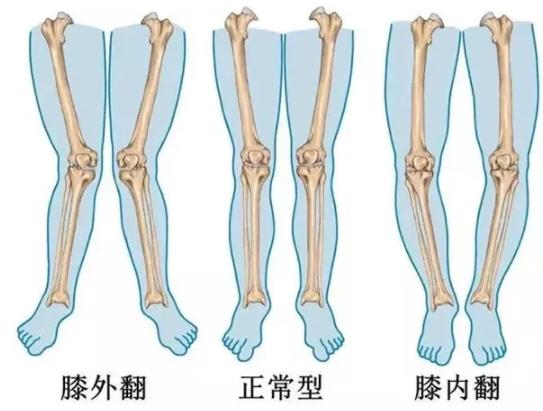 怎么让孩子腿又直又好看 培养孩子好看腿型的方法