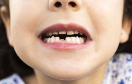 为什么你宝宝的长牙慢 宝宝长牙会有什么症状