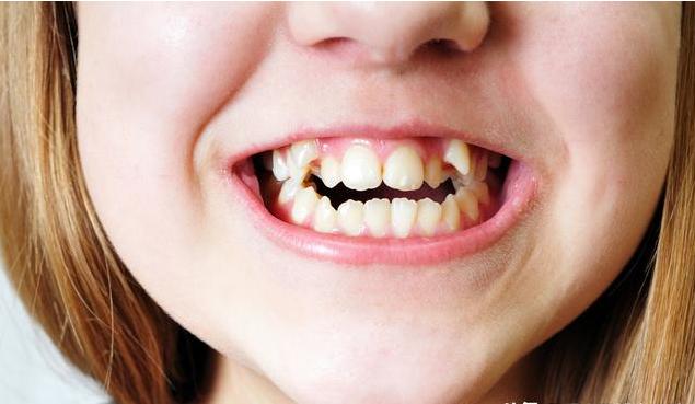 儿童矫正最佳年龄是什么时候 儿童做矫正牙齿后注意事项