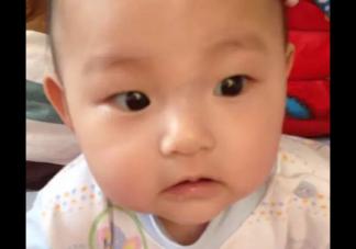 为什么孩子脸上有青筋  鼻梁有青筋的孩子该怎样护理