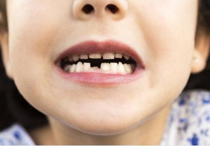 孩子牙没刷干净嘴巴丑怎么办_孩子牙没刷好可能导致骨质疏松牙齿脱落 孩子如何正确的刷牙