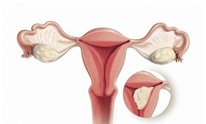 月经量多更容易得子宫内膜癌吗 子宫内膜癌的早期表现