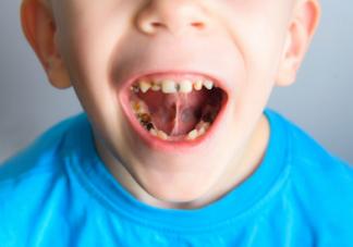 不吃糖也会引起满嘴的烂牙 孩子牙齿长不好是因为这几点习惯