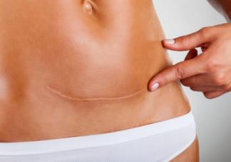 剖腹产的疤痕会对女性有什么影响 剖腹产后疤痕该如何护理