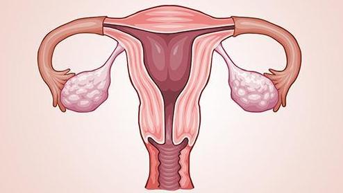 子宫内膜癌有哪些早期征兆 子宫内膜癌早期信号