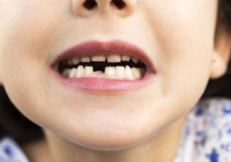孩子长双排牙是怎么回事 孩子长了双排牙该怎么办