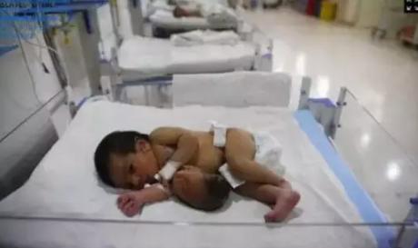寄生胎是怎么形成的 寄生胎可以存活吗