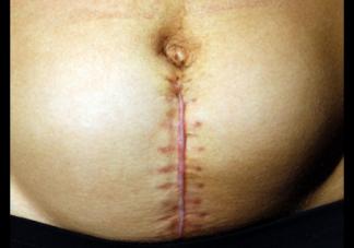 疤痕体质的孕妇剖腹产是怎样的体验 疤痕体质有多可怕