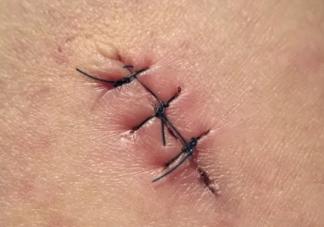 顺产撕裂和侧切有什么不同 顺产撕裂和侧切的区别