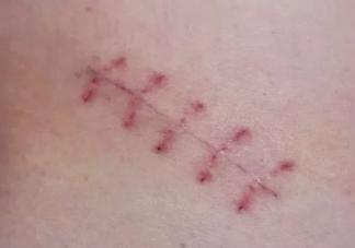 顺产撕裂伤口怎么护理 顺产撕裂伤口护理方法