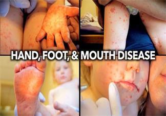大人怎么预防宝宝手足口病 孩子手足口需要打疫苗吗