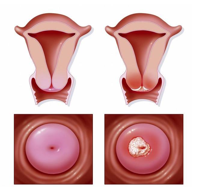 感染了HPV病毒多久會發展為宮頸癌 宮頸癌初期癥狀